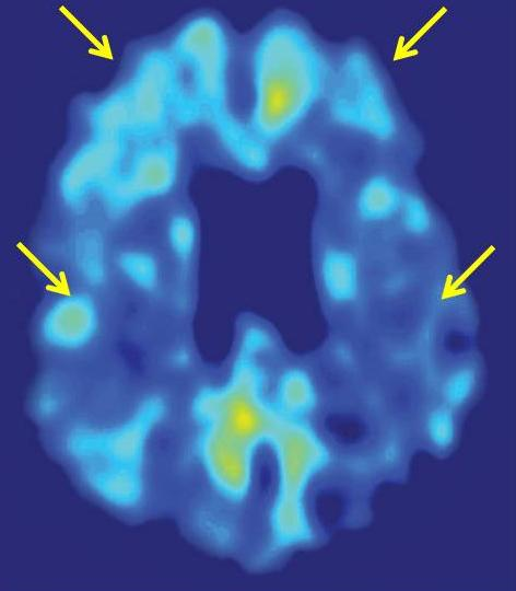 Brain scan. An FDDNP brain scan of an individual with mild cognitive impairment (MCI) illustrates the parietal and frontal regions of the brain (see arrows) that have significant relationships to cognitive function. The lateral temporal lobe was another significant region, but is not included in this brain section. (Image credit: UCLA)