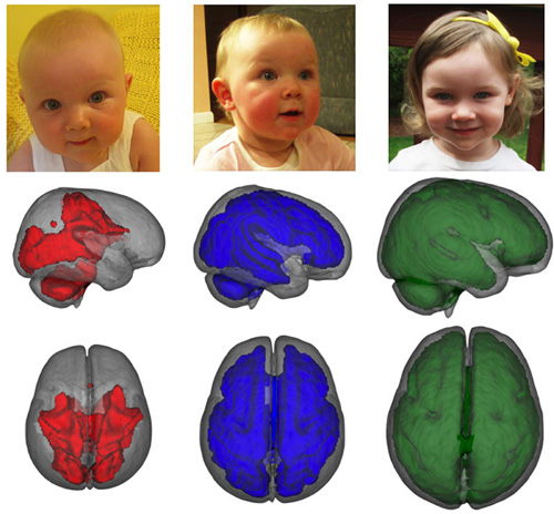 Support for the developing brain. MRI images, taken while children were asleep, showed that infants who were exclusively breastfed for at least three months had enhanced development in key parts of the brain compared to children who were fed formula or a combination of formula and breastmilk. Images show development of myelization by age, left to right. Image credit: Baby Imaging Lab/Brown University