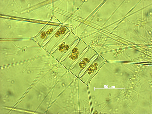 Marine plankton diatom, Chaetoceros decipiens, is catalogued in the MAREDAT atlas. (Photo courtesy of Karine Leblanc, Mediterranean Institute of Oceanography.)