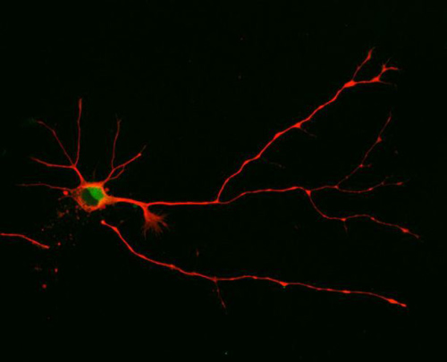 In this study, UA researchers discovered that a neuron will form multiple axons as seen here when they blocked the short version of a signaling molecule from functioning. (Photo by: Sara Parker)