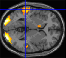 Scientists mapped brain activity when subjects read poetry and prose. Image credit: University of Exeter