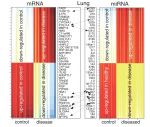'Surprisal analysis' provides a method to characterize how cellular energy is distributed in cancer cells to express critical genes. Image: The thermodynamic lung cancer-specific gene (mRNA and miRNA) signature.  This figure illustrates that genes that up-regulated in the lung cancer state are down regulated in normal controls, and genes that are highly up-regulated in the normal controls are down-regulated in the lung cancer state. There is a clear, correlated gene-expression behavior present that not only characterizes the lung cancer state but can also be used to distinguish cancer patients from non-cancer patients.  Image credit: PNAS/Sohila Zadran, Raphael Levine, Francoise Remacle (Click image to enlarge)