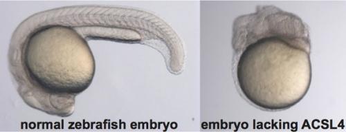 Aside-by-side comparison of a normal zebrafish embryo and a zebrafish embryo lacking ACSL4. Image credit to RosaLinda Miyares.
