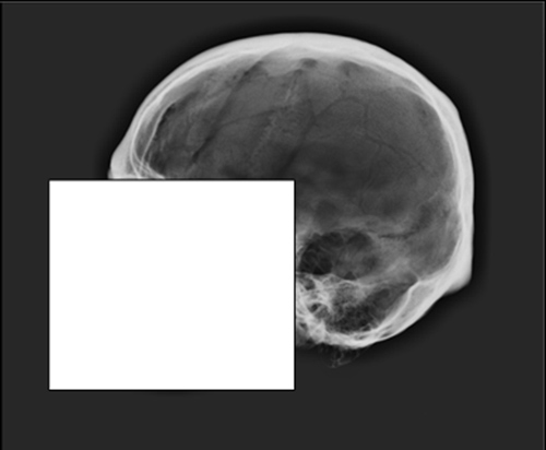 This X-ray image shows the cranial vault outline of a skull. Click to enlarge. Image credit: Ashley Maxwell