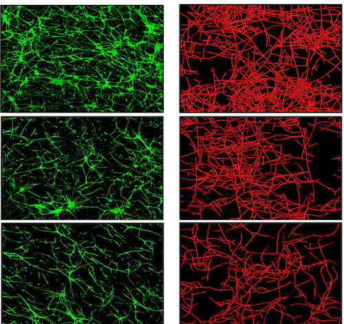 """The microscope images on the left (green) show real blood vessels growing in culture, while the images on the right (red) are from a computer simulation of blood vessel growth. The top images show real and simulated blood vessel growth when vessel fragments are placed in an """"extracellular matrix"""" of collagen with a relatively low density. The middle and bottom images show how blood vessel growth is impeded when they are placed in collagen matrix with medium and higher density, respectively. University of Utah bioengineers say the computer simulation of blood vessel growth is an early step toward new treatments to provide better blood supply to skin grafts and implanted ligament and tendon, as well as tissues damaged by diabetes and heart attack. Photo Credit: Jeff Weiss and Lowell Edgar, University of Utah"""