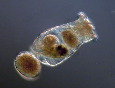 Ein Brachionus-Weibchen mit angeheftetem Ei. (Foto credit: Claus-Peter Stelzer)