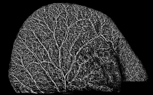High-resolution microvasculature of a mouse ear are shown using the UW's optical imaging technique called microangiography. Image credit: Siavash Yousefi, U of Washington