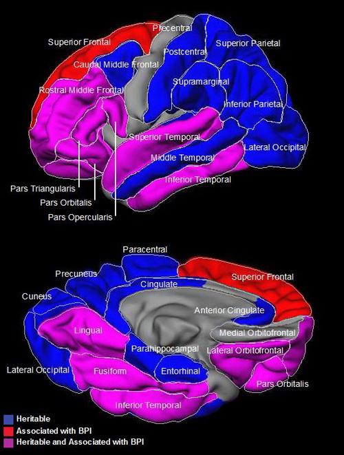 Bipolar disorder and brain regions. Image credit: University of California