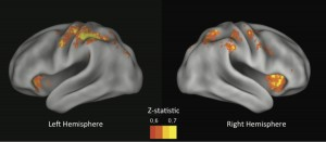 When these brain regions (mostly associated with control) aren't active enough, we make risky choices. Z-statistic corresponds to predictive ability, yellow being the most predictive regions. Image: Sarah Helfinstein/U. of Texas at Austin (Click image to enlarge)
