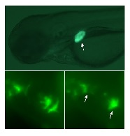 The upper image is a three-day-old zebrafish larva showing activation of green fluorescent protein expression in the liver (arrow) following exposure to an estrogenic compound. An unexpected response was also found in the developing heart valves (bottom images, arrows), show in their open (left) and closed (right) states. Image credit: Carnegie Institution for Science