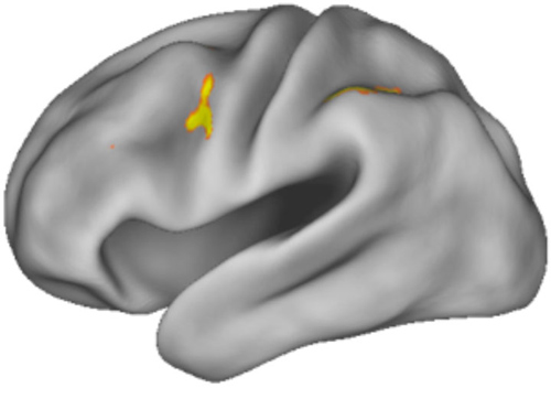 Working memory at work. The area around the dorsal anterior premotor cortex registered activity in MRI scans as subjects underwent experiments designed to test how the brain selects from working memory. Image credit: Badre lab/Brown University