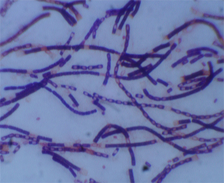 Anthrax bacteria are rod-shaped and transmitted through abrasions in the skin or through inhalation. Image credit: University of Missouri