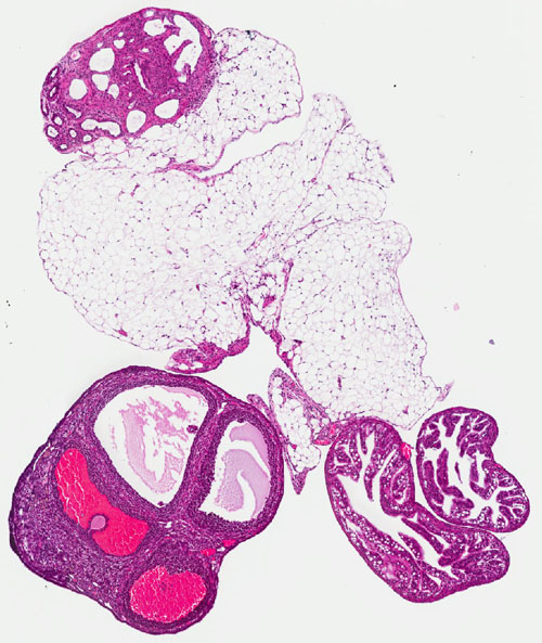 Possible culprits hiding in plain sight. A mouse ovary showing potentially precancerous changes. The over- or under-representation of proteins called TAFs, once thought benign parts of the genetic machinery, may be implicated in ovarian cancers. Image credit: Caitlin Brown/Freiman lab/Brown University