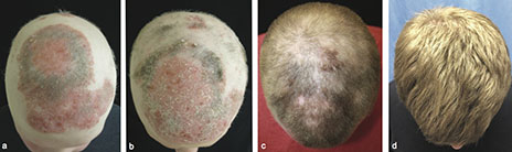 These panels show the patient's head a) before treatmen with tofacitinib, b) two months into treatment, c) five months into treatment, and d) eight months into treatment. Image credit: Yale University