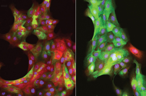 These fluorescent images of human mammary epithelial cells show the effects of aging. In the left image, multipotent progenitor cells from a 19-year-old young woman respond to a tumor-mimicking stiff surface by differentiating into red-colored tumor-suppressing myoepithelial cells. In the right image, progenitor cells from a 66-year-old woman fail to launch this putative cancer-fighting response when exposed to a stiff surface. (Image credit: Pelissier/LaBarge)
