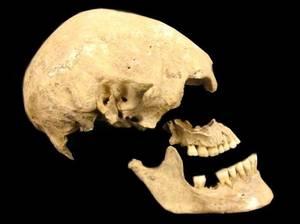 Schädel der ungefähr 7.000 Jahre alten Bäuerin aus Stuttgart, Deutschland. Es fehlt der untere rechte Backenzahn, aus dem die DNA gewonnen wurde. Bild credit: Joanna Drath, Universität Tübingen