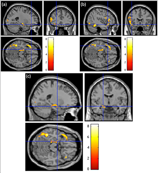 Sentences containing words that invoked taste activated areas in the lateral orbitofrontal cortex (a) and frontal operculum (b) known as the gustatory cortices that allow for the physical act of tasting. Taste-related metaphors also stimulated brain regions known to be associated with emotional processing, such as the left hippocampus, parahippocampal gyrun and amygdala (c). The colors indicate the level of activation prompted by metaphorical sentences in comparison to literal sentences with 8 signifying the greatest amount of neural activity. (Image courtesy of Adele Goldberg, Council of the Humanities)