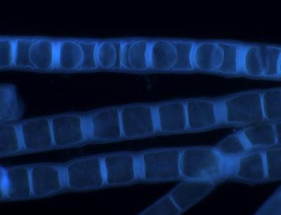 Fluoreszenzmikroskopische Aufnahme der Zygogonium ericetorum, zur Darstellung der Zellwand (im obersten Algenfaden sind Aplanosporen zu sehen) (Bild credit:  R. Stancheva)