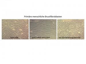 Links: unbehandelte Fibroblasten. Bildmitte: Nach einer entzündlichen Aktivierung sieht man kaum Unterschiede. Rechts: Die Aktivierung der Wundheilungsaktivität führt zu einer erhöhten Zelldichte. Image copyright: Universität Wien (Click image to enlarge)