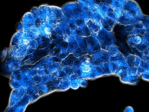 Die neue Strategie aktiviert den Wirkstoff (blau fluoreszierend) spezifisch im sauerstoffarmen Tumorgewebe (Image copyright: Diana Groza)