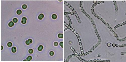 Cyanobakterien: Synechocystis (links) und Anabaena sp. (rechts). Fotos credit: Karl Forchhammer