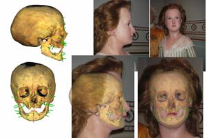Von vorne und von der Seite: Gesichtsrekonstruktion mit eingeblendetem Schädel. Bild Quelle: Ursula Wittwer-Backofen, Biologische Anthropologie, Universität Freiburg