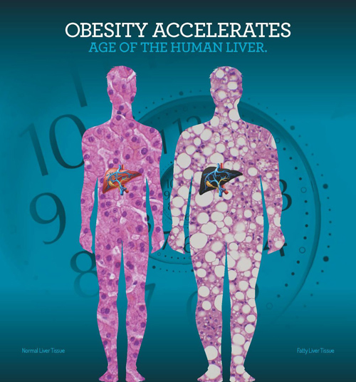 Obesity increases the age of liver. The patterns of the figures provides a microscopic view of liver cells from lean (left) and obese subjects. Image Courtesy of Steve Horvath