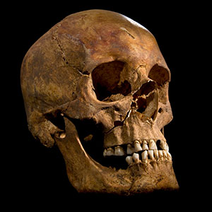 Skull of 'Skeleton 1' (Image courtesy of University of Leicester)