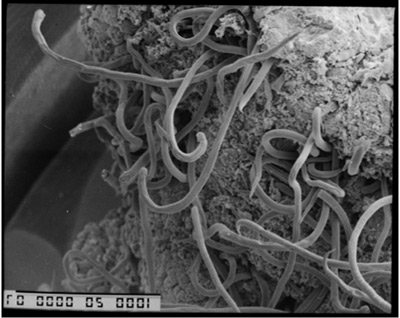 The researchers examined the relationship between each sheep's body weight and its level of infection by nematodes, tiny parasitic worms that thrive in the gastrointestinal tract of sheep. This scanning electron micrograph shows nematodes on the surface of a sheep's gut with a field of view of approximately one centimeter. An economic detriment to sheep farmers, nematodes infect both wild and domesticated sheep, resulting in weight loss, reduced wool growth and death. (Photo by David Smith, Moredun Research Institute)
