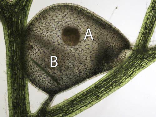 Falle des Südlichen Wasserschlauchs (Utricularia australis) mit einem toten Wasserfloh (A) und einer gefangenen Zieralge (B; Pleurotaenium sp.) (Image copyright: Universität Wien).