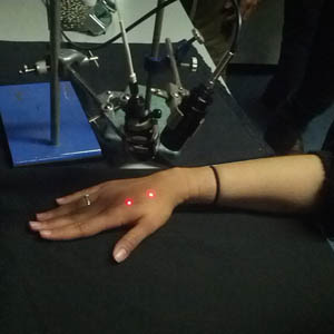 Image of a similar experiment where volunteers' hands were stimulated by 'pinprick' laser pain pulses (Image credit: UCL)