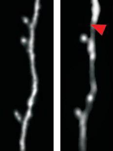 Bilder aus dem Großhirn einer lernenden Maus. Ein Dornfortsatz einer Großhirnnervenzelle wird abgebaut. Zwei Bilder an zwei verschiedenen Tagen (roter Pfeil zeigt die Stelle mit fehlendem Dornfortsatz). Der Dornfortsatz misst ca. 1 Mikrometer im Durchmesser. Image credit: Universität Tübingen