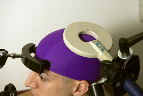 A transcranial magnetic stimulation coil is placed over the part of the brain that controls the receiver's right hand movements. Image credit: Mary Levin, U of Wash.