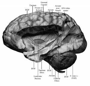 "A camera lucida drawing made by E.J Curran depicts a postmortem dissection of the vertical occipital fasciculus. Curran described the VOF as ""striking in its appearance, size, and complete isolation from the longitudinal fibers under it."" Image credit: Jason Yeatman (click image to enlarge)"