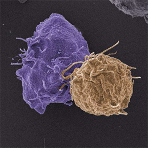 HIV-1 infected T cell (purple) interacting with an uninfected target T cell (brown) during cell-to-cell spread at the virological synapse. Image credit: University College London