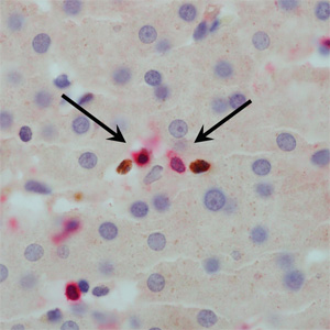 Magnified image of liver sample from Hepatitis B patient showing a suppressor cell (red) approaching a T cell (brown) (Image courtesy of Dr Pallett & Professor Maini)