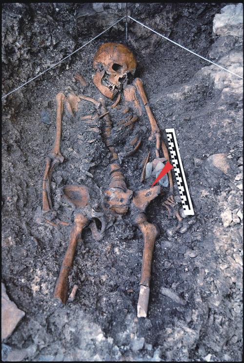 Der Backenzahn gehört  zu dem 14.000 Jahre alten Skelett, das 1988 in der Felshöhle von Riparo Villabruna in Norditalien gefunden wurde. Foto credit: A. Broglio