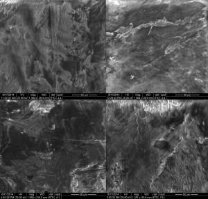 Die Rasterelektronenmikroskop (REM) Aufnahme zeigt Rillen im kariösen Zahnloch die vermutlich von steinzeitlichen Klingen stammen. Foto credit: G. Oxilia (Click image to enlarge)