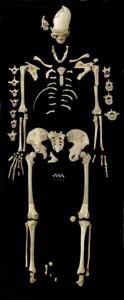 An dem ca. 7000 Jahre alten weiblichen Skelett wurden Hinweise für eine Leukämieerkrankung gefunden. Image credit: © M. Francken/Universität Tübingen