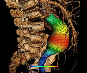 Three-dimensional reconstruction of an abdominal aortic aneurysm with colour representation of its diameter. Photo credit: CRCHUM.