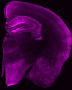 Blick ins Gehirn einer Maus: In den magenta leuchtenden Bereichen haben sich Tau-Proteine angesammelt. In einigen Nervenzellen (helle Flecken) ist die Konzentration besonders hoch. Zum Teil sind die Fortsätze (Dendriten) der Nervenzellen zu erkennen. Image credit: © Jens Wagner / DZNE
