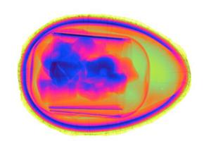Farbige Röntgenaufnahme eines Überraschungseis. Image Quelle: FMF