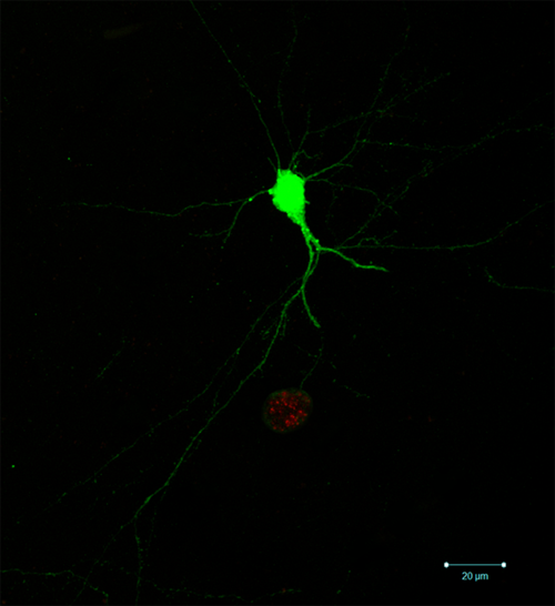 A single infected neuron. The ability to identify which neurons are infected, and which part of the neuron is infected, relies on the parasite-induced expression of green fluorescent protein in the neuron as well as the expression of a red fluorescent protein by the parasites themselves. (Photo by: Anita Koshy)