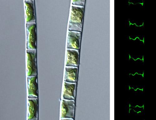 Das Bild zeigt die Grünalge Klebsormidium crenulatum im lichtmikroskopischen Bild (links) und die Zellwände zwischen den Zellen nach Antikörperfärbung von Callose. (Bild credit: Klaus Herburger)
