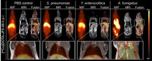 Rechts eine Mäuselunge, deren Befall mit dem Schimmelpilz A. fumigatus durch die Anreicherung der radioaktiv markierten Antikörper (helle Bereiche) sichtbar wird, wohingegen eine mit dem bakteriellen Erreger Yersinia enterocolitica infizierte Lunge (links) keinerlei Anreicherung im Lungengewebe zeigt. Grafik credit: Werner Siemens Imaging Center (Click image to enlarge)
