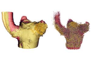 Die dreidimensionale Abbildung der äußeren Form (links) sowie des gesamten Leitbündelsystems (rechts) der Ast-Stamm-Anbindung im Drachenbaum zeigt, welche Teile sich im Inneren der Pflanze im belasteten Zustand (gelb) im Vergleich zum unbelasteten (rot) verschieben. Image credit: Universität Freiburg