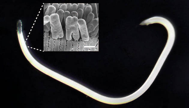 Die Analyse dieses Bakteriums, einem Symbionten vom Robbea hypermnestra-Nematoden (Fadenwurms), hat die Diskussion um die Theorie des geschlossenen Proteinrings zur Zellteilung neu eröffnet. Maßstab: 5 Mikrometer (Image copyright: Nikolaus Leisch, Nature Microbiology).