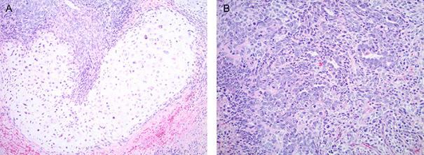 Panel showing both epithelial and sarcomatous cells of carcinosarcoma. Image credit: Yale University