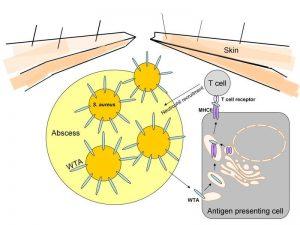 """Das Zellhüllen-Zuckerpolymer Wandteichonsäure (WTA) von Staphylococcus aureus spielt bei der Entwicklung von Hautinfektionen eine Rolle. Besonders bei Infektionen mit hoch aggressiven sogenannten """"Community-Associated Methicillin-Resistant Staphylococcus aureus"""" (CA-MRSA), die einen im Gegensatz zu weniger aggressiven S. aureus Stämmen erhöhten WTA-Gehalt aufweisen, führt dies zu einer verstärkten Immunreaktion. Diese Immunreaktion beschleunigt die Ausbildung eines Abszesses der normalerweise die Infektion einschränken sollte, im Falle der CA-MRSA allerdings zu einem schwereren Infektionsverlauf beiträgt. Abbildung credit: Universität Tübingen (Click image to enlarge)"""
