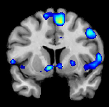 An fMRI scan shows regions of the brain that become active when devoutly religious study participants have a spiritual experience, including a reward center in the brain, the nucleus accumbens. PHOTO CREDIT: Jeffrey Anderson